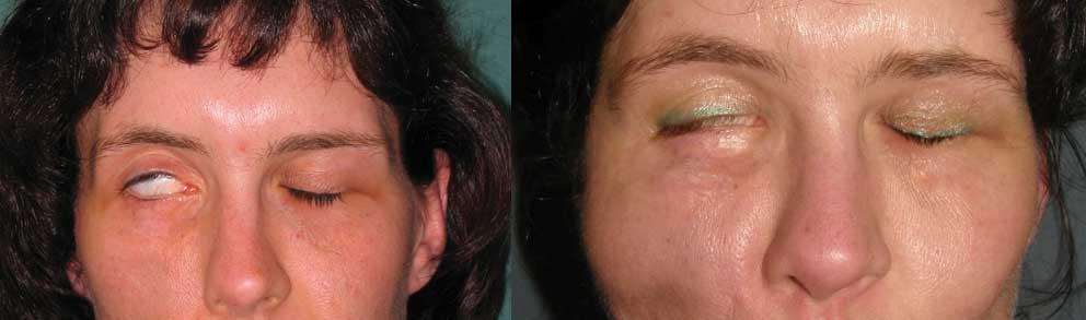 Famoso Rianimazione e riabilitazione per paralisi del nervo facciale - Dr  HW19